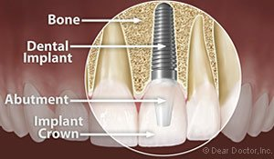 Dental Implants Omaha, NE